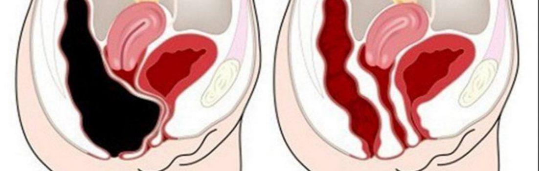 Cu acest remediu complet natural veti putea scapa de toxinele din colon Cu acest remediu complet natural veti putea scapa de toxinele din colon !
